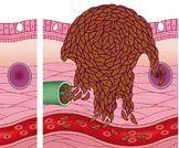 شاهدوا بالفيديو: مراحل الميلانوما
