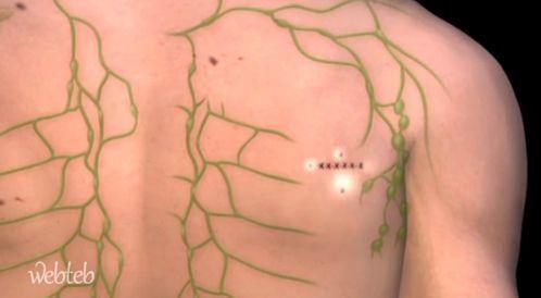 شاهدوا بالفيديو عن خزعة العقدة الحارسة لسرطان الجلد