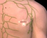 خزعة العقدة الحارسة لسرطان الجلد