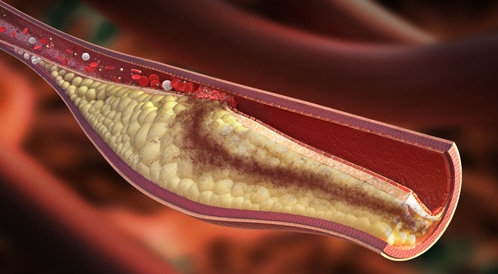 ارتفاع مستوى الكوليسترول