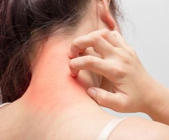 تعاني من توهّج الجلد؟