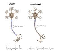 Was ist Multiple Sklerose
