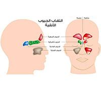 التهاب الجيوب الانفية علاج الجيوب الانفية ويب طب