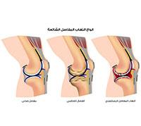 انواع التهاب المفاصل