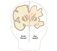 دماغ مرضى الزهايمر
