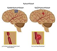 السكتة الدماغية اسباب اعراض و علاج مرض السكتة الدماغية