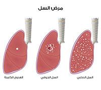 تطور مرض السل