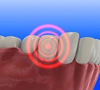 ما هو الم الاسنان