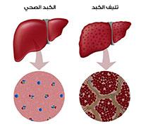 تليف الكبد تشمع الكبد علاج تليف الكبد التليف الكبدي ويب طب
