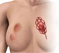 سرطان الثديBreast Cancer سرطان-الثدي.jpg
