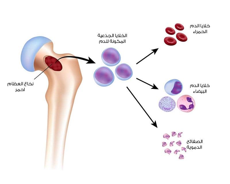 ما هو سرطان الغدة الدرقية