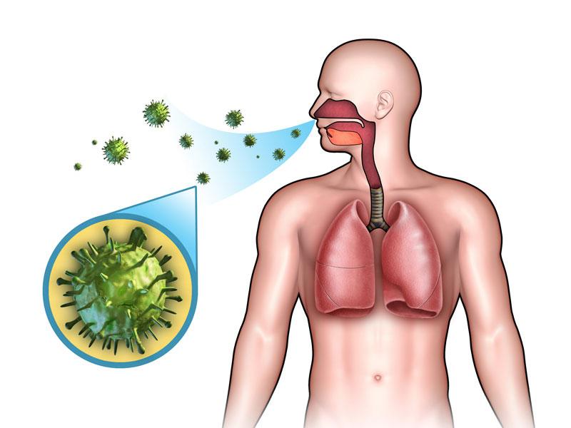 علاج قوي وفعال الالتهاب الرئوي