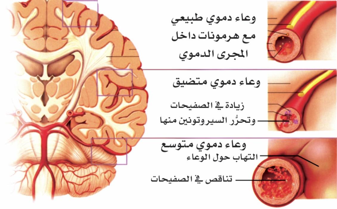 صورة الدماغ المصاب بالشقيقة