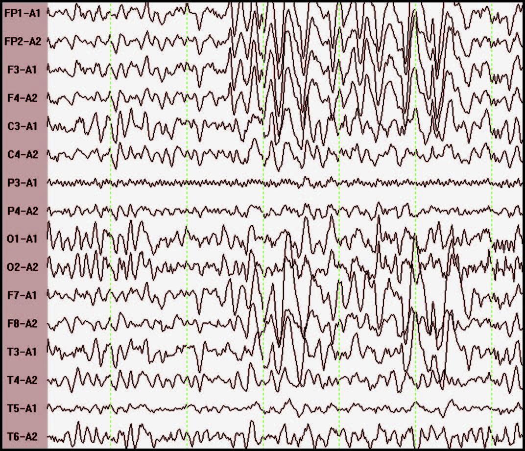 عينة تخطيط دماغ لطفل توحدي.