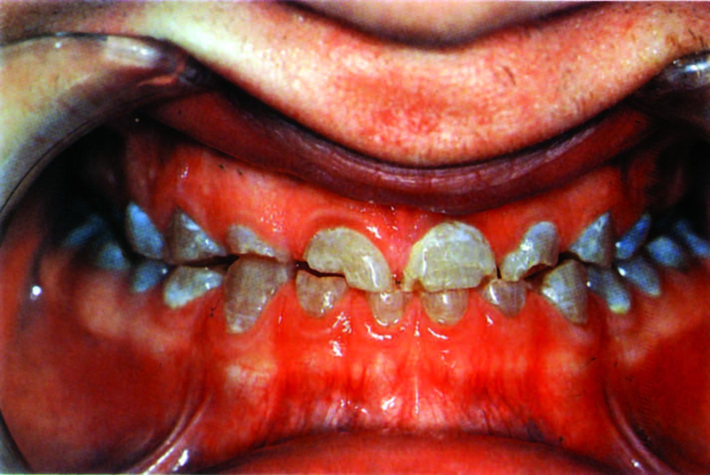 تلون الأسنان باللون الرمادي وتاكلها الشديد  نتيجة سوء تشكل العاج.