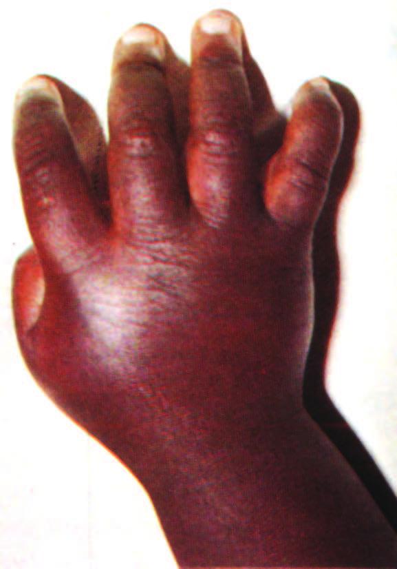 التهاب أصابع اليدين عند طفل مصاب بالتلاسيميا