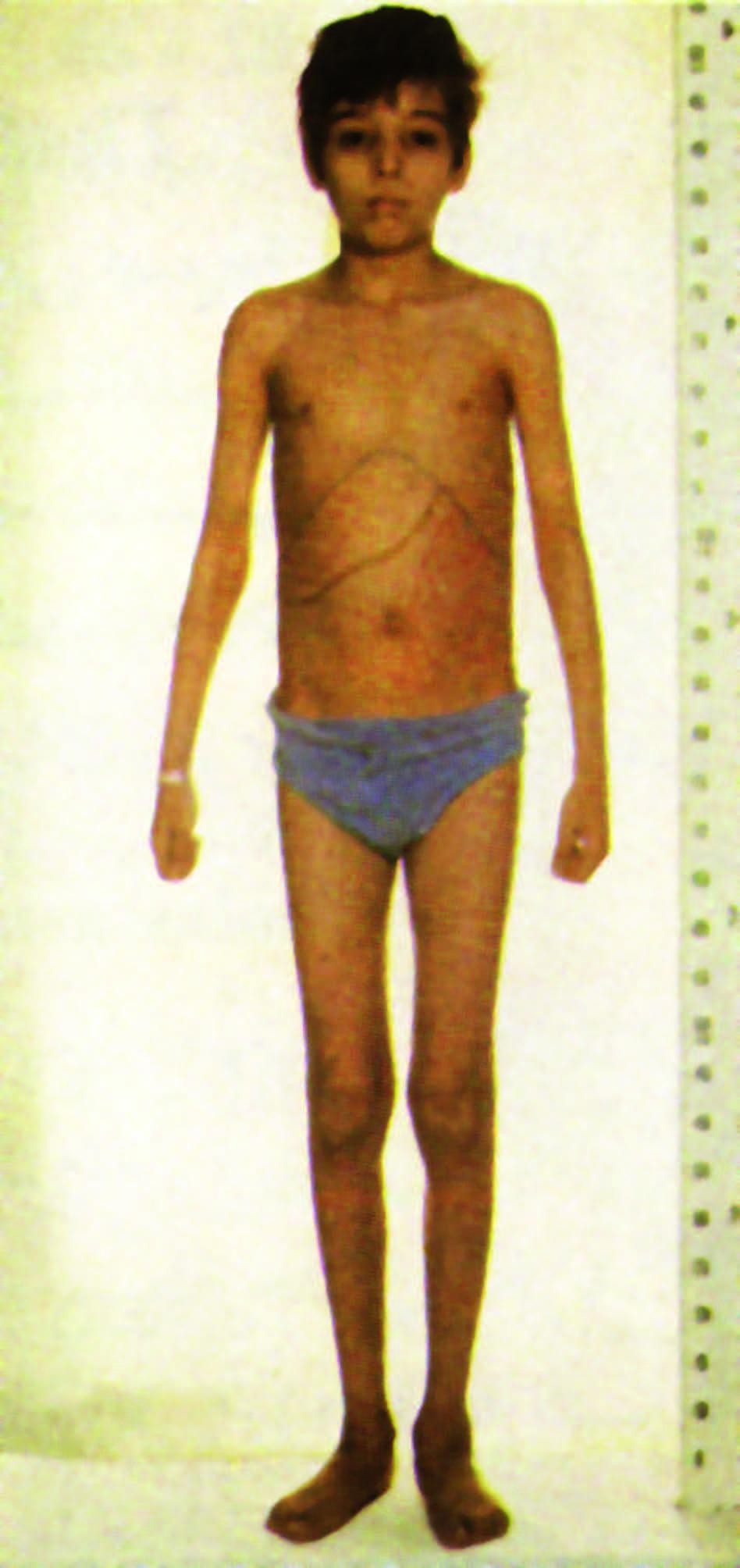 فشل النمو عند مريض التلاسيميا.