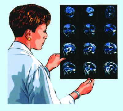 يجري التصوير المقطعي CT scan لتحديد مدى امتداد المرض وإصابة الجهاز العصبي المركزي.