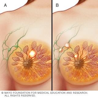 المرحلة الثانية من سرطان الثدي
