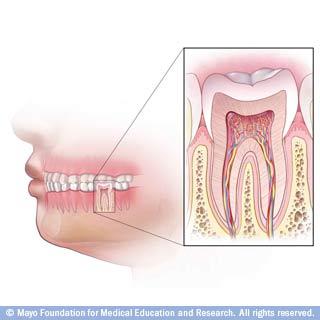 نظرة عامة على علاج جذور الاسنان