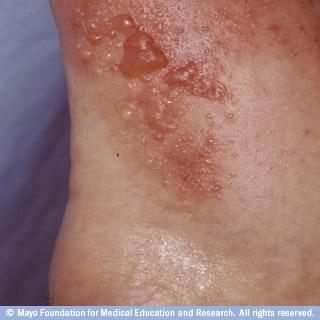 التهاب الجلد التماسي التحسسي