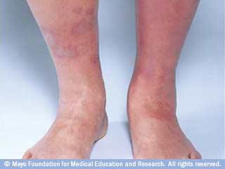 التهاب الجلد الركودي