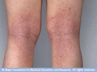 التهاب الجلد التأتبي