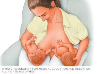 الإرضاع: وضعية الحمل تحت الإبط للتوائم