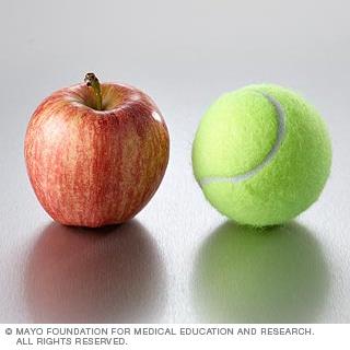 الفواكه: التفاح وغيره