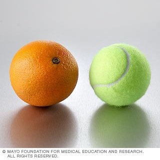 الفواكه: البرتقال