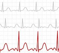 ما هو فحص تخطيط القلب الكهربائي