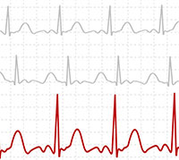 ab6685832 تخطيط القلب الكهربائي - اجراء الفحص وتحليل النتائج - ويب طب