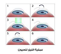 جراحة العيون بالليزر