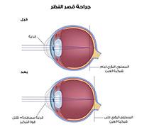 جراحة قرنية العين
