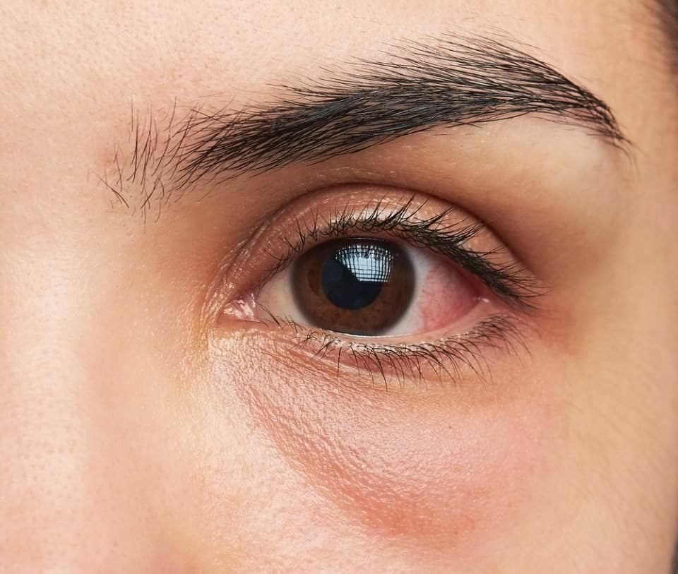 صورة إمراة تعاني من انتفاخ العينين