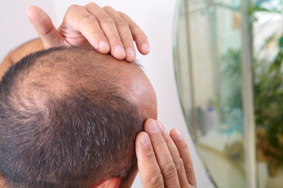 تطوير علاج للثعلبة الخبيثة (الصلع الكامل) Alopecia Totalis