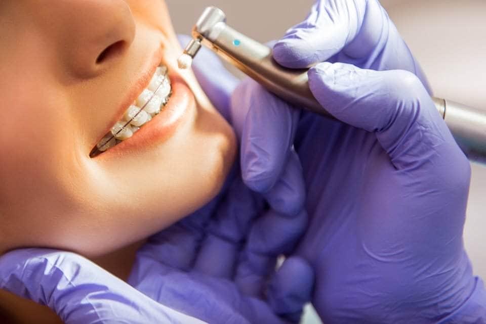 صورة لعلاج أسنان امراة لدى طبيب الأسنان