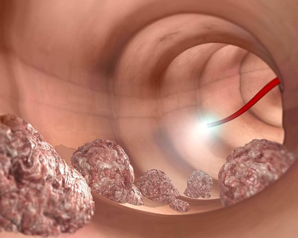 صورة للتشخيص داخل القولون باستخدام الناظور