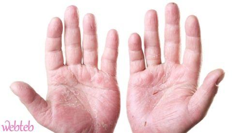اعراض مرض الزهري