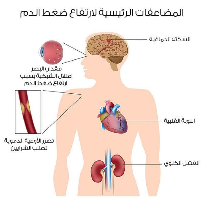 ارتفاع ضغط الدم: كل المعلومات اللازمة - ويب طب