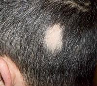 الشعر ومشاكله: ماذا يعكس شعرك