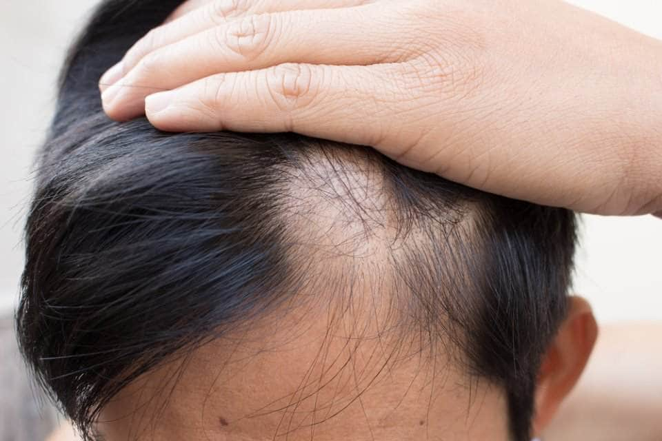 صورة لرجل يعاني من تساقط الشعر