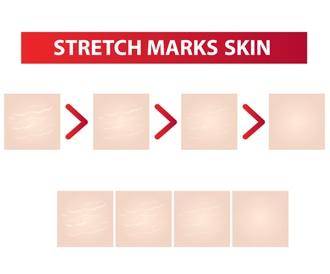 صورة لعلاج تشققات الجلد