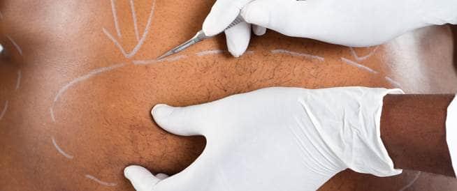 صورة لجراح يخطط على البطن أماكن إجراء العملية
