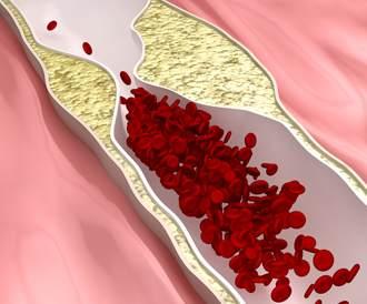 اسباب وعوامل خطر الكوليسترول