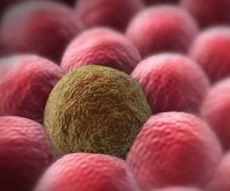 اسباب وعوامل خطر السرطان