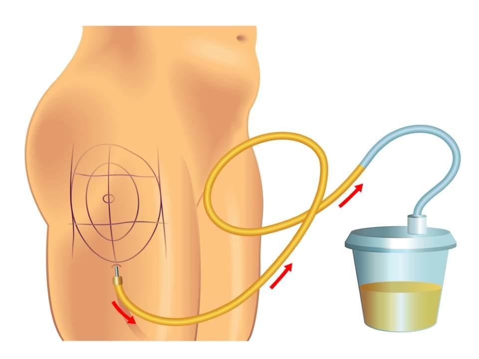 صورة توضح كيفية اجراء عملية شفط الدهون