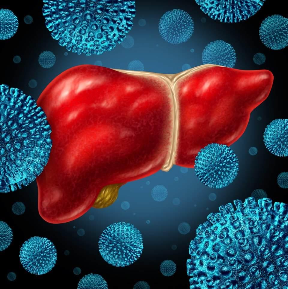 صورة لكبد مصاب بالالتهاب