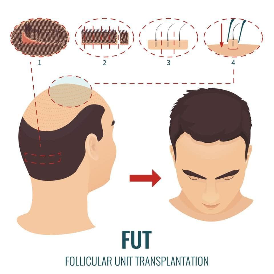 صورة لعملية زراعة الشعر