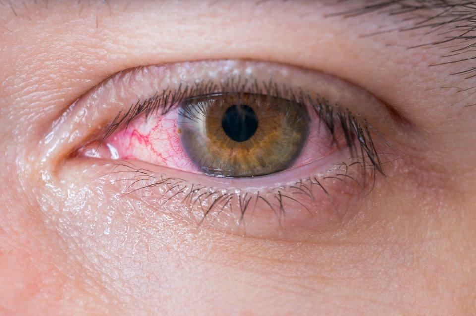 صورة لعين حمراء